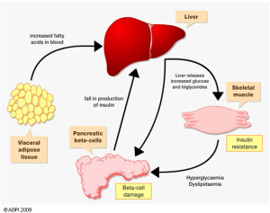 fatty liver diabetes connection