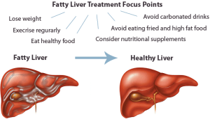 fatty_liver_treatment1